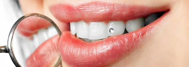 Художественная эстетическая реставрация зубов