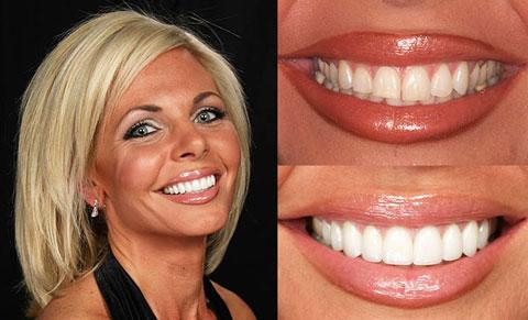 зубные виниры perfect smile veneers