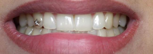 Что такое скайсы? Украшения для зубов