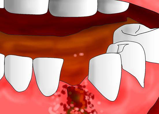 Остановить кровь после удаления зуба