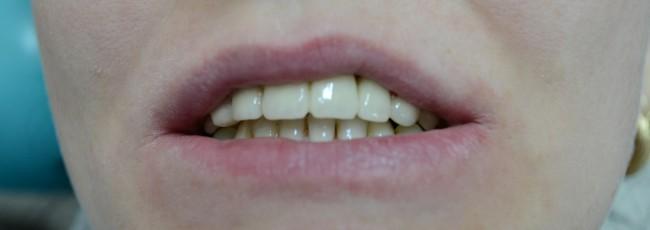 После протезирования зубов металлокерамикой