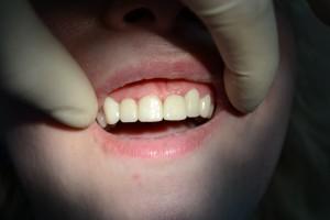 После винирования передних зубов