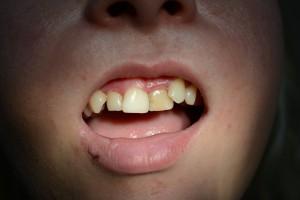 Ситуация до применения техники винирования зубов