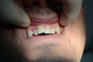 Скученность зубов во фронтальном участке