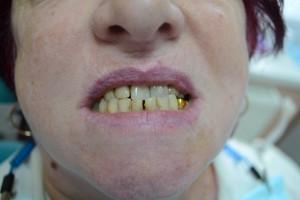 До протезрования зубов