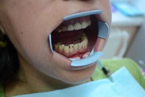 Кариес нижнего зуба