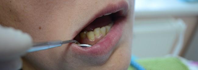 После пломбировки зуба фотополимером