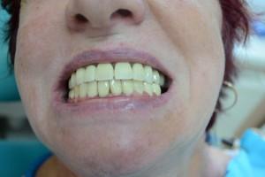 После протезирования зубов белыми коронками