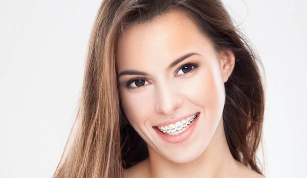 Современные виды брекетов в стоматологии