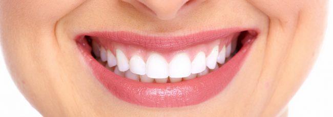 Какая цена идеальной улыбки?