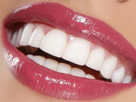 Удлинить зубы и сделать красивую улыбку