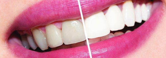 Профессиональное отбеливание зубов в Сумах