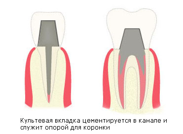 Культевая вкладка на зубы
