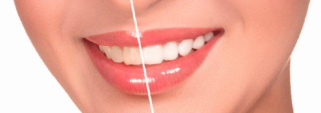 Линия губ - важный фактор