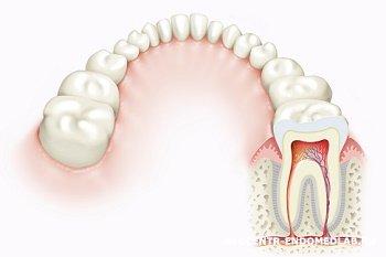 Противопоказания для проведения реставрации зубов