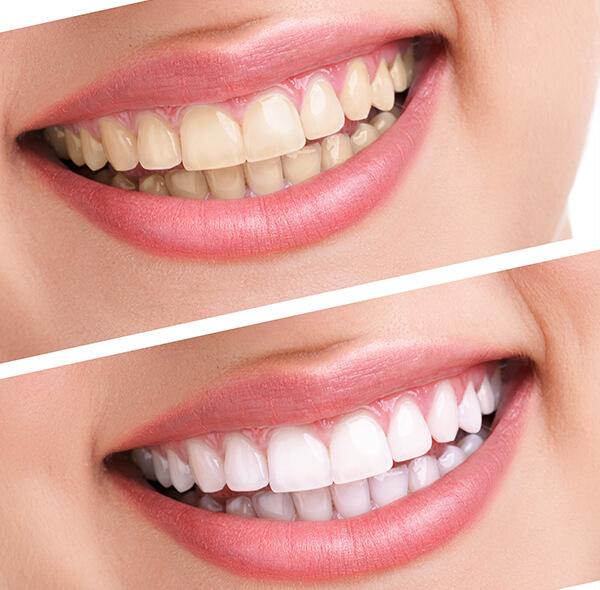 Отбеливать ли зубы лазером?