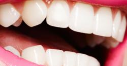 Про восстановление зубов