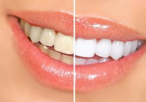 Что нужно знать о чистке зубов?