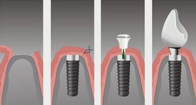 Виды зубных имплантов в стоматологии