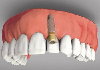 Импланты на передние зубы