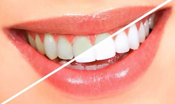 Основные этапы отбеливания зубов