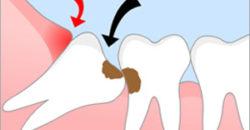 Удаление зуба мудрости в стоматологии