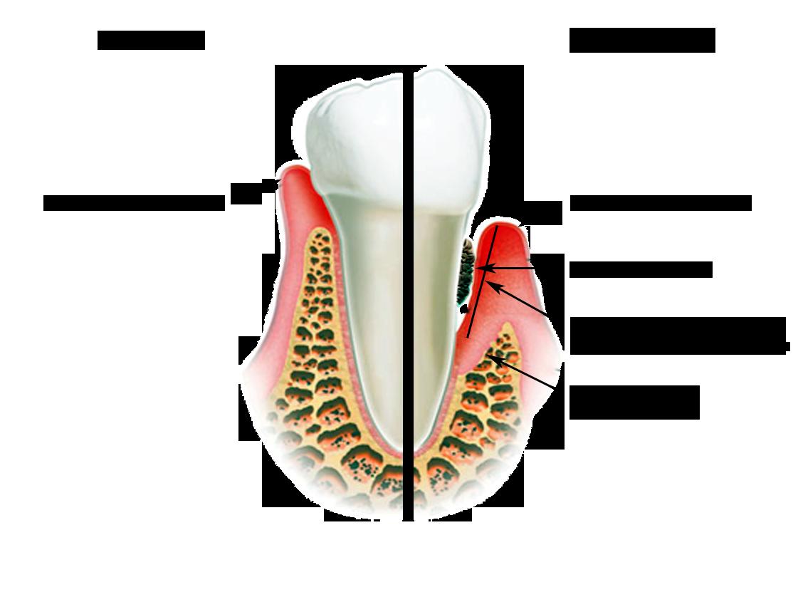 Чем снять воспаление зуба в домашних условиях