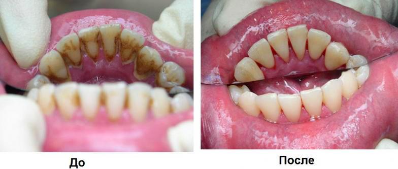 Чем в домашних условиях снять налет с зубов